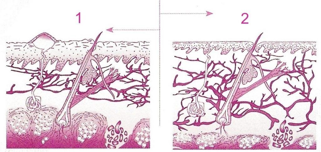 Efekt przed i po zabiegu 1