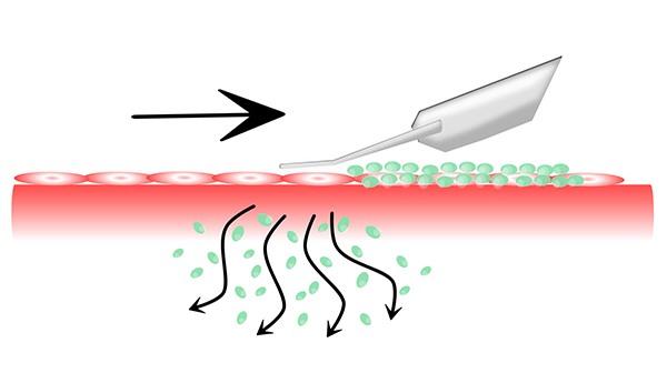 Sonoforeza ultradzwieki