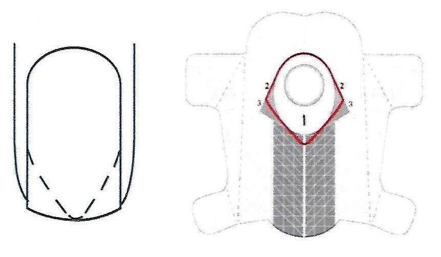 Sposoby podstawiania szablonow forma 2